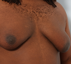 Gynecomastia - Patient 8 -  Before